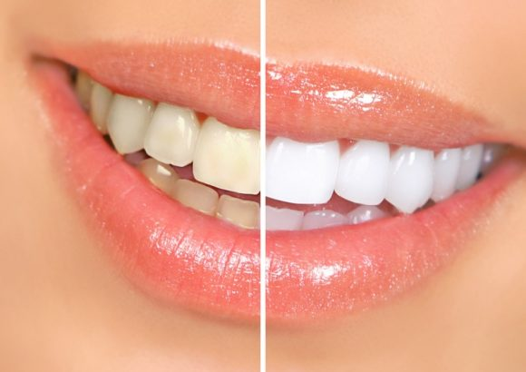 Teeth Whitening- Get A Pearl White Smile
