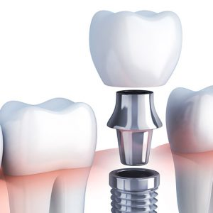 DENTAL IMPLANTS- A BOON FOR THOSE WITH MISSING TEETH!