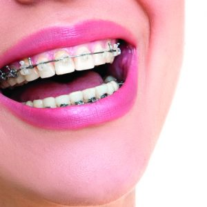Orthodontic Treatment- Beautifying Your Smile, The Natural Way!