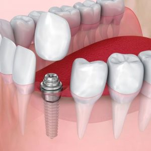 Perfect Dental Implants in Udaipur with Dr Saurabh's Dental Clinic & Implant center