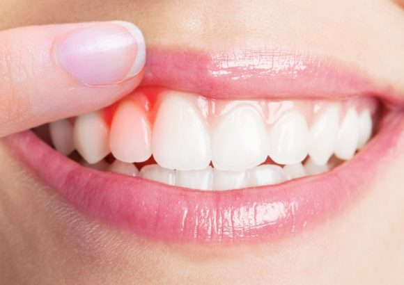 Gum Disease And Their Solutions
