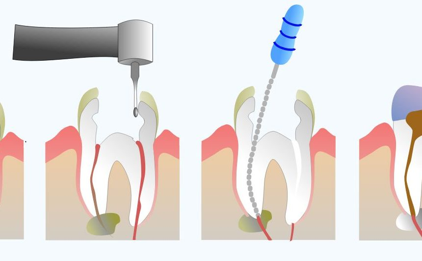 Root canal treatment (RCT)- all you need to know!
